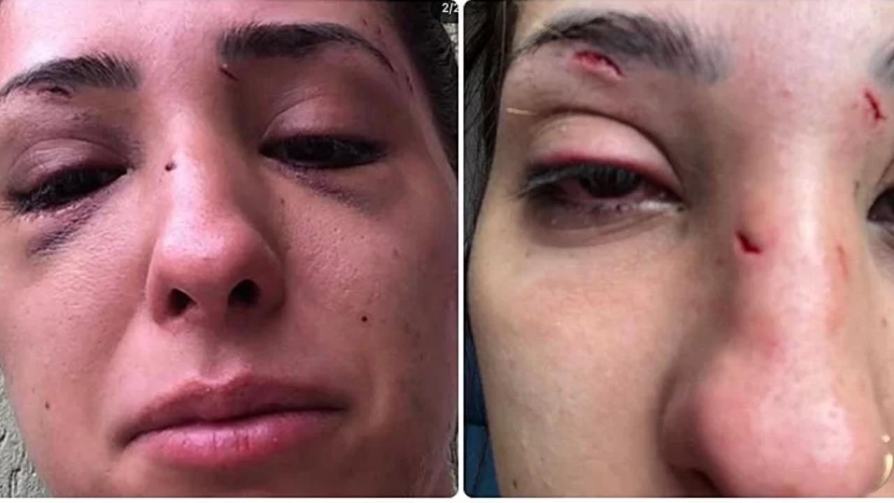 Fotos da jovem Gabriela Casellato com o rosto machucado após ser agredida pelo ex-namorado em São Paulo
