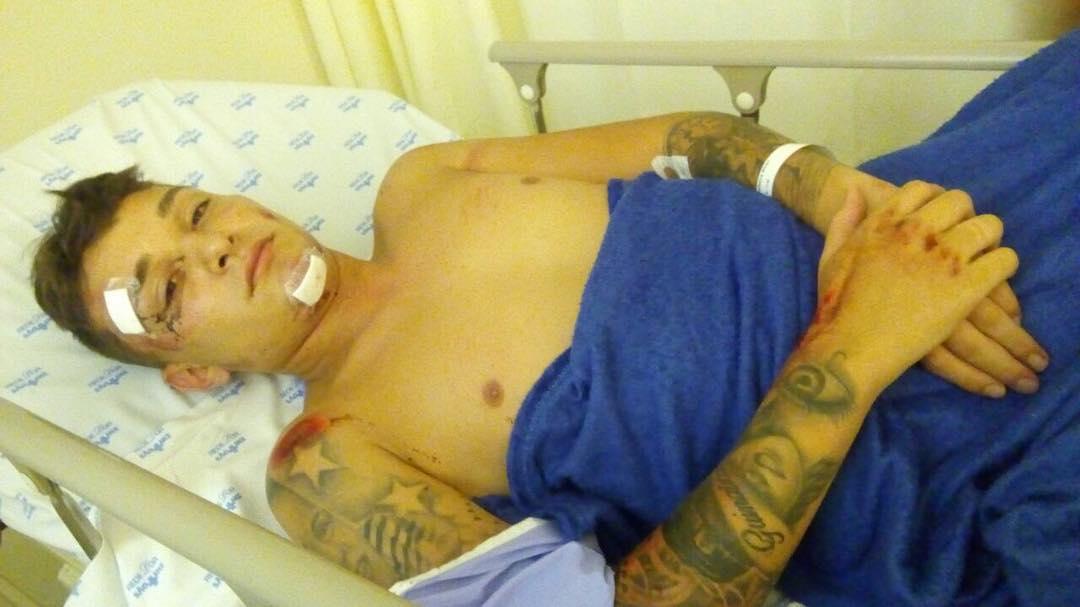 MC Gui sofre acidente de moto em São Paulo